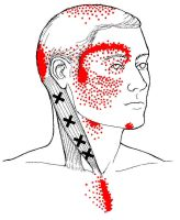 Headache Trigger Points and Referral